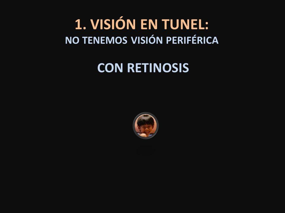 1. VISIÓN EN TUNEL: NO TENEMOS VISIÓN PERIFÉRICA CON RETINOSIS