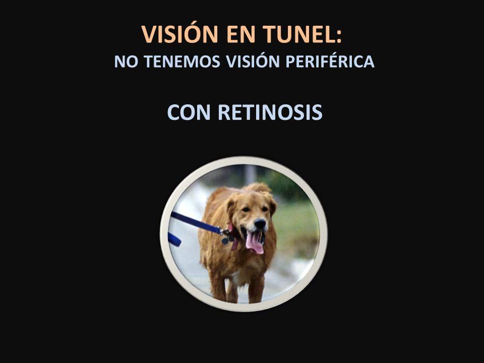 VISIÓN EN TUNEL: NO TENEMOS VISIÓN PERIFÉRICA CON RETINOSIS
