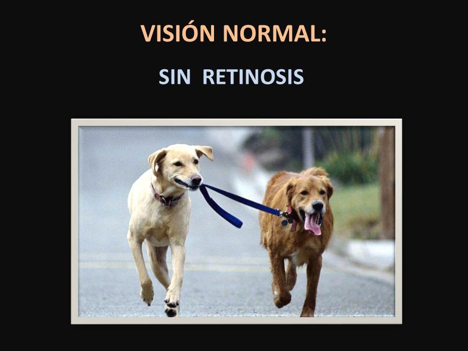 SIN RETINOSIS VISIÓN NORMAL: