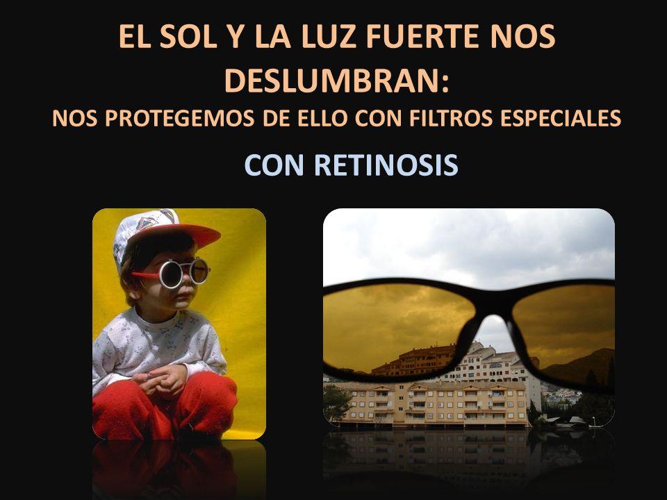 EL SOL Y LA LUZ FUERTE NOS DESLUMBRAN: NOS PROTEGEMOS DE ELLO CON FILTROS ESPECIALES CON RETINOSIS