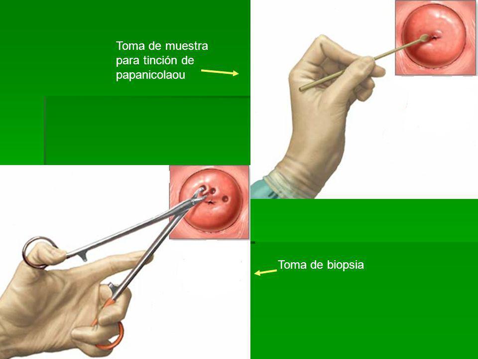 Toma de muestra para tinción de papanicolaou Toma de biopsia