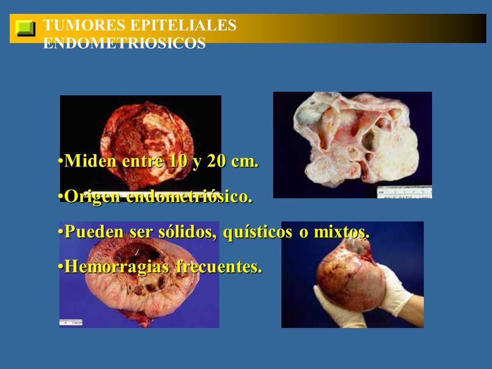 TUMORES EPITELIALES ENDOMETRIOSICOS Miden entre 10 y 20 cm.Miden entre 10 y 20 cm.