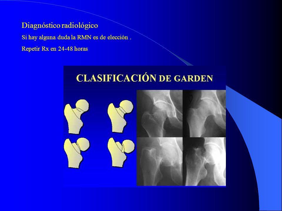 Diagnóstico radiológico Si hay alguna duda la RMN es de elección. Repetir Rx en 24-48 horas