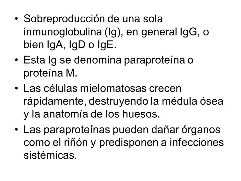 Sobreproducción de una sola inmunoglobulina (Ig), en general IgG, o bien IgA, IgD o IgE. Esta Ig se denomina paraproteína o proteína M. Las células mi