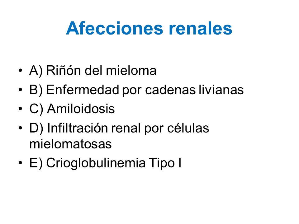 Afecciones renales A) Riñón del mieloma B) Enfermedad por cadenas livianas C) Amiloidosis D) Infiltración renal por células mielomatosas E) Crioglobul