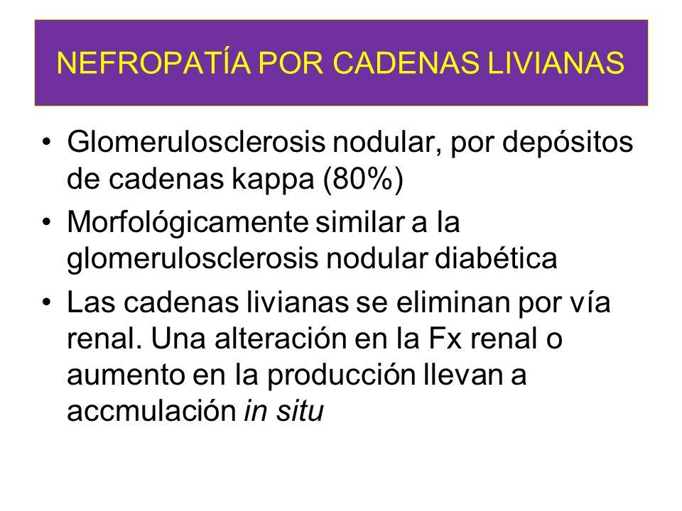 NEFROPATÍA POR CADENAS LIVIANAS Glomerulosclerosis nodular, por depósitos de cadenas kappa (80%) Morfológicamente similar a la glomerulosclerosis nodu