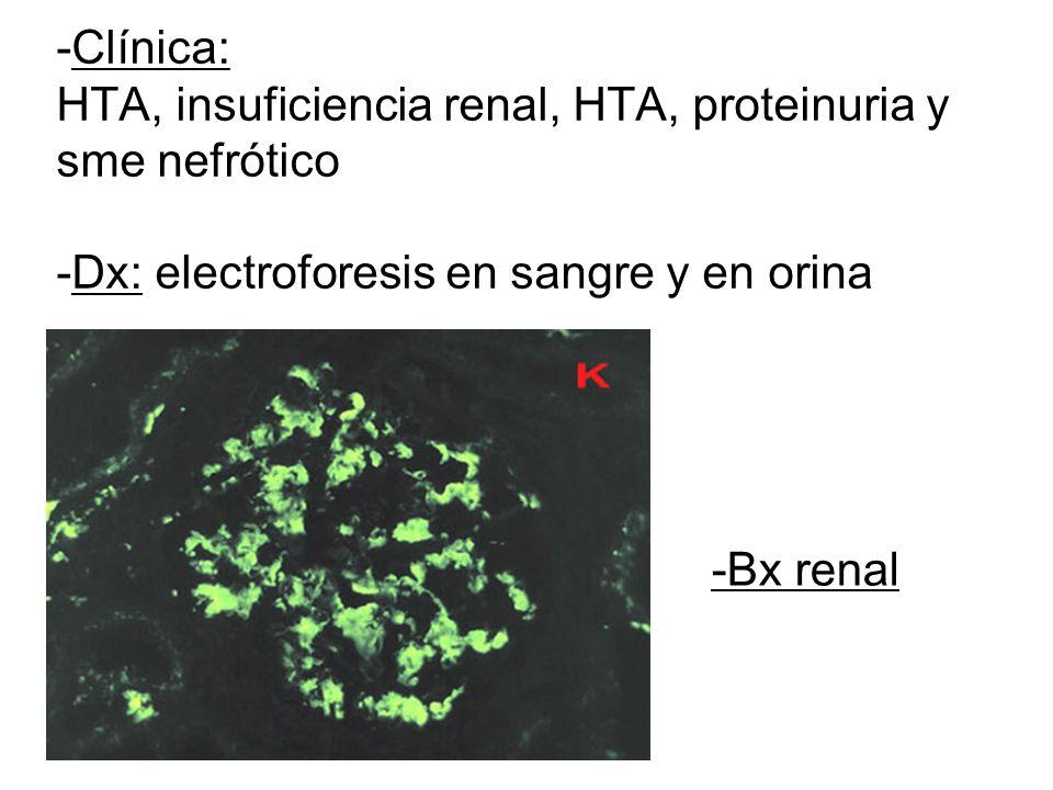 -Clínica: HTA, insuficiencia renal, HTA, proteinuria y sme nefrótico -Dx: electroforesis en sangre y en orina -Bx renal