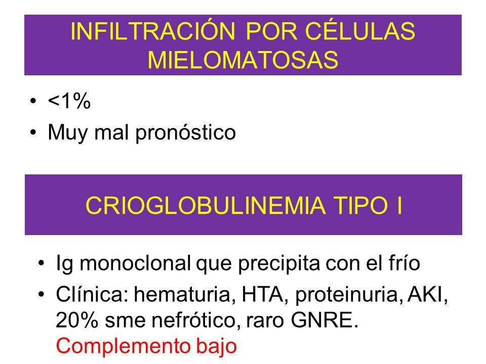 INFILTRACIÓN POR CÉLULAS MIELOMATOSAS <1% Muy mal pronóstico CRIOGLOBULINEMIA TIPO I Ig monoclonal que precipita con el frío Clínica: hematuria, HTA,