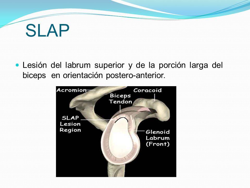 SLAP Lesión del labrum superior y de la porción larga del biceps en orientación postero-anterior.