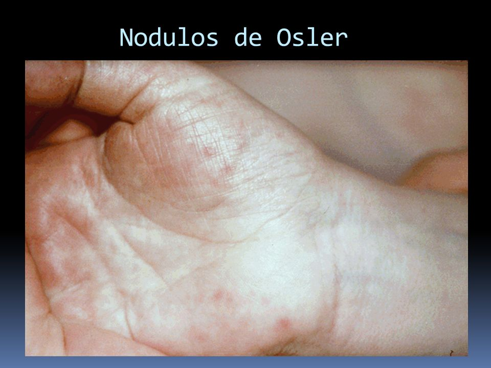 Nodulos de Osler