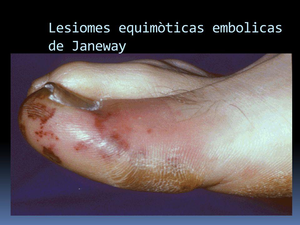 Lesiomes equimòticas embolicas de Janeway