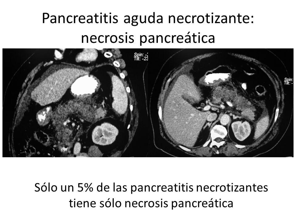 Necrosis peripancreática Sólo un 20% presentan sólo necrosis peripancreática