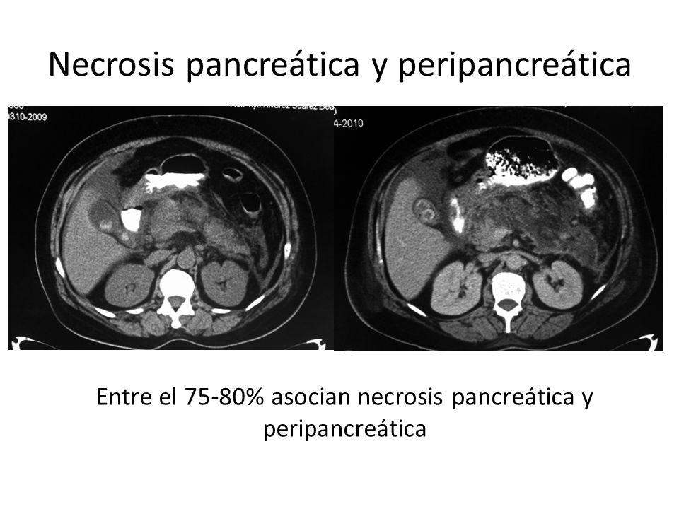 complicaciones locales La pancreatitis aguda puede acompañarse de colecciones: Se definen 4 tipos de colecciones