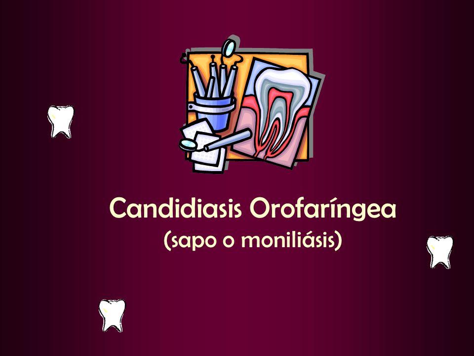 Candidiasis Orofaríngea (sapo o moniliásis)