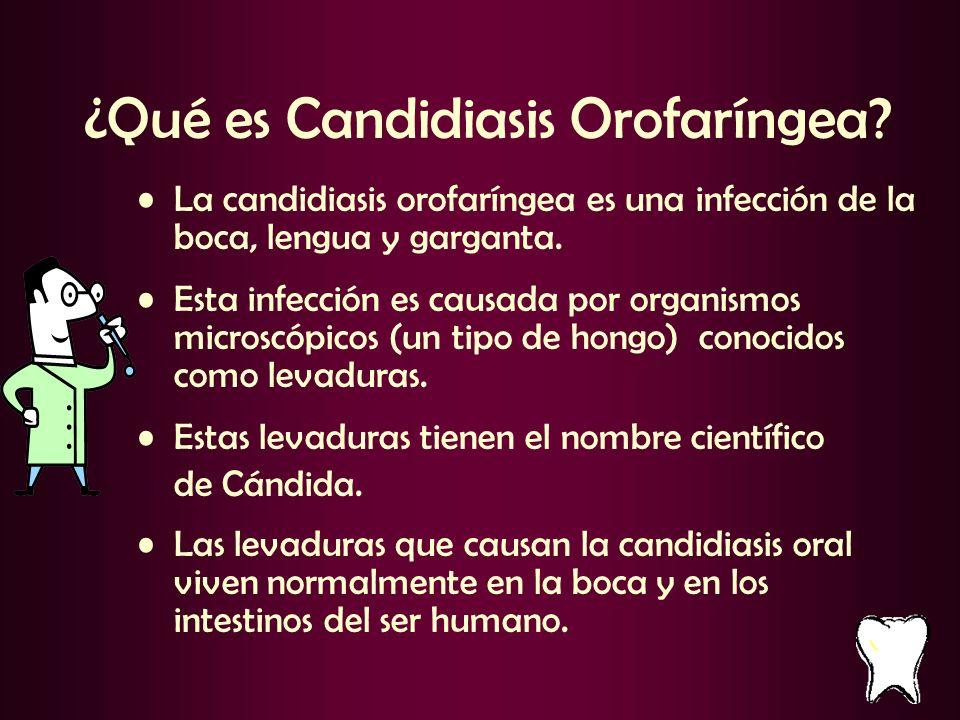 ¿Qué es Candidiasis Orofaríngea? La candidiasis orofaríngea es una infección de la boca, lengua y garganta. Esta infección es causada por organismos m
