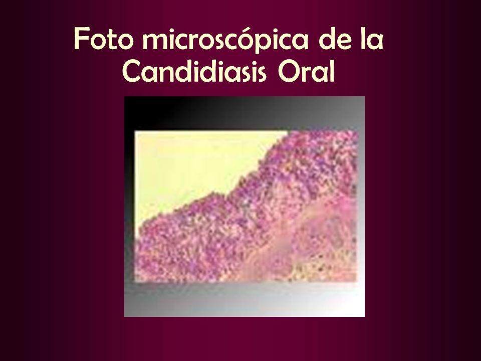 Foto microscópica de la Candidiasis Oral