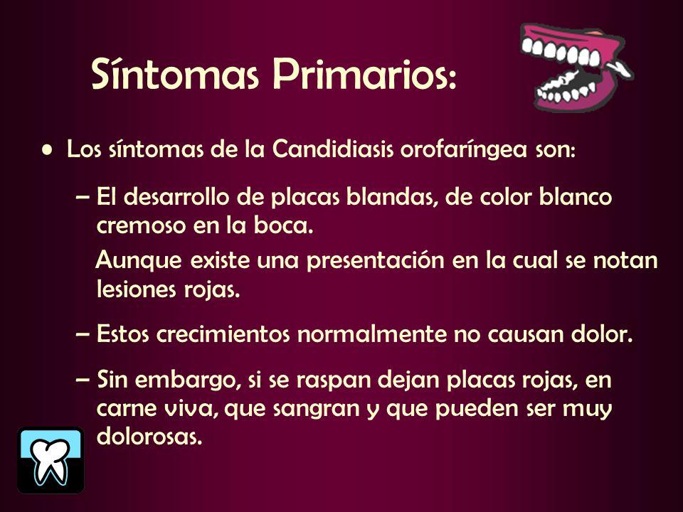 Síntomas Primarios: Los síntomas de la Candidiasis orofaríngea son: –El desarrollo de placas blandas, de color blanco cremoso en la boca. Aunque exist