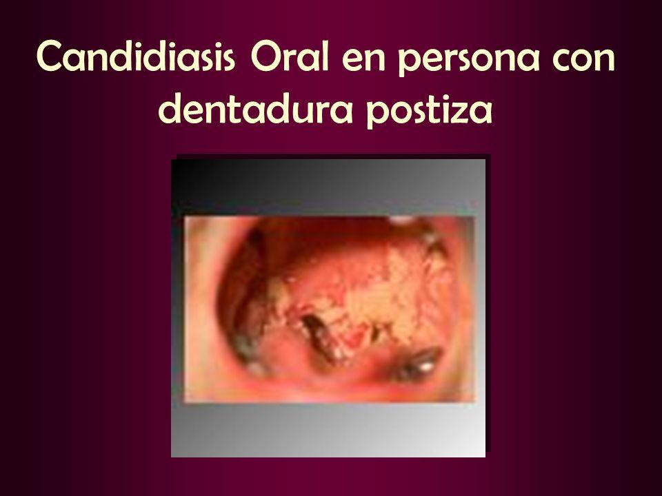Candidiasis Oral en persona con dentadura postiza