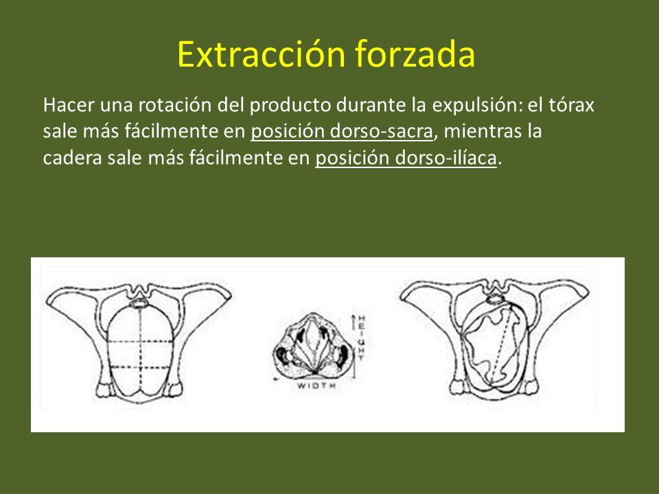 Extracción forzada Hacer una rotación del producto durante la expulsión: el tórax sale más fácilmente en posición dorso-sacra, mientras la cadera sale