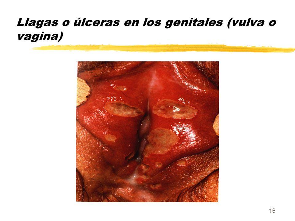16 Llagas o úlceras en los genitales (vulva o vagina)