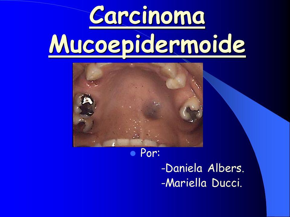 Carcinoma Mucoepidermoide Tumor compuesto por células epidermoides y mucosas.