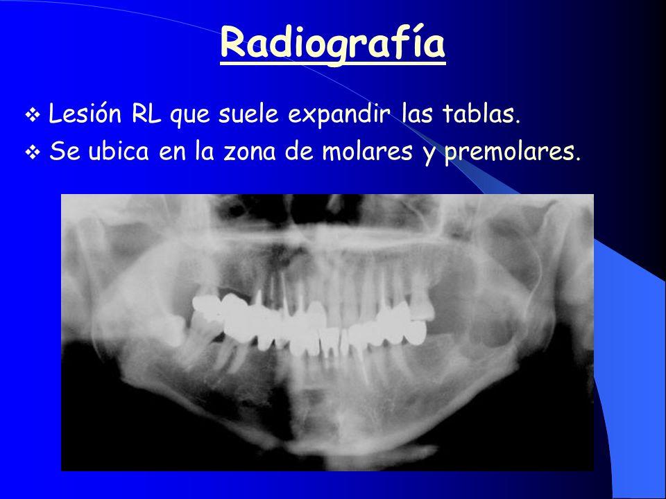 Radiografía Lesión RL que suele expandir las tablas. Se ubica en la zona de molares y premolares.