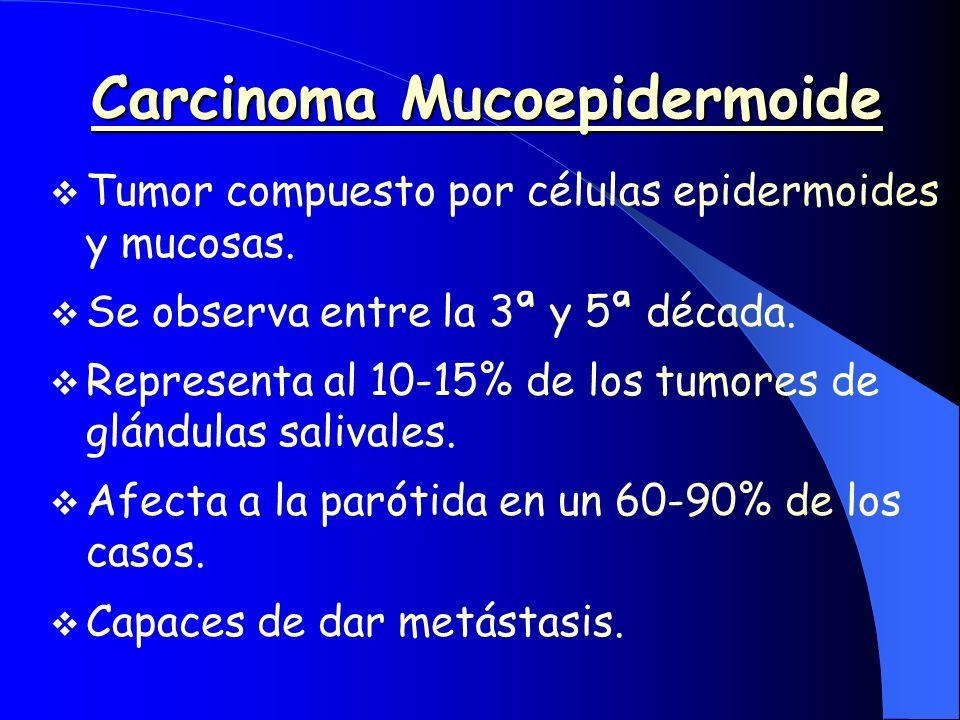 Carcinoma Mucoepidermoide Tumor compuesto por células epidermoides y mucosas. Se observa entre la 3ª y 5ª década. Representa al 10-15% de los tumores