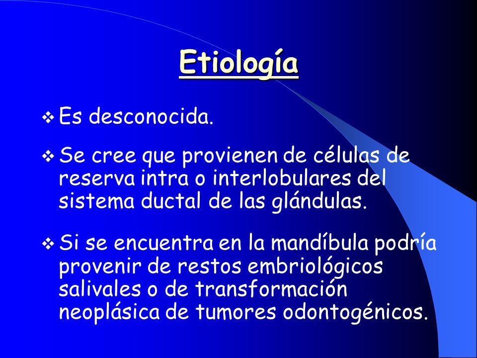 Etiología Es desconocida. Se cree que provienen de células de reserva intra o interlobulares del sistema ductal de las glándulas. Si se encuentra en l