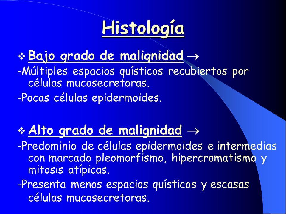 Histología Bajo grado de malignidad -Múltiples espacios quísticos recubiertos por células mucosecretoras. -Pocas células epidermoides. Alto grado de m