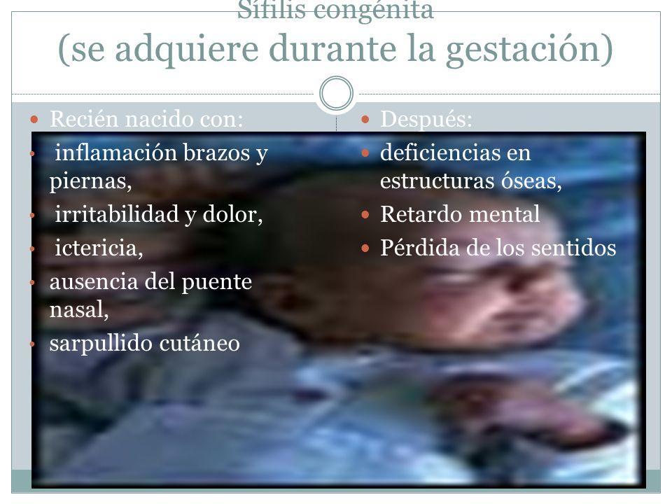 Sífilis congénita (se adquiere durante la gestación) Recién nacido con: inflamación brazos y piernas, irritabilidad y dolor, ictericia, ausencia del p
