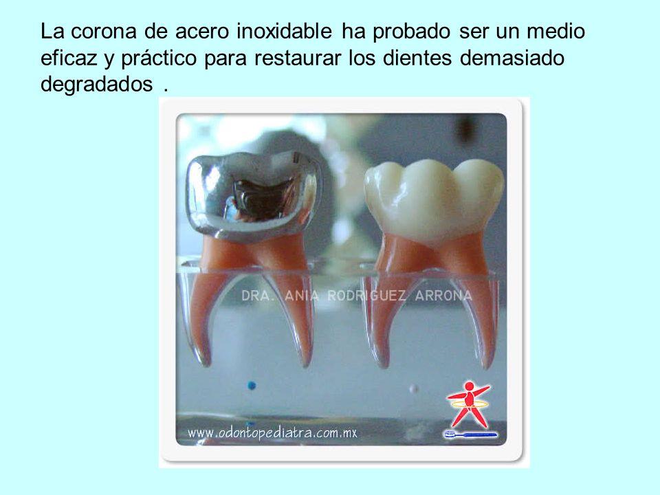 La corona de acero inoxidable ha probado ser un medio eficaz y práctico para restaurar los dientes demasiado degradados.