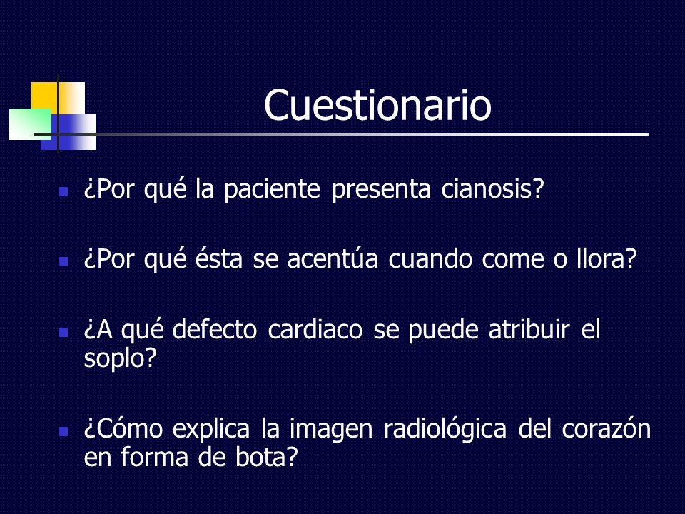 Cuestionario ¿Por qué la paciente presenta cianosis? ¿Por qué ésta se acentúa cuando come o llora? ¿A qué defecto cardiaco se puede atribuir el soplo?