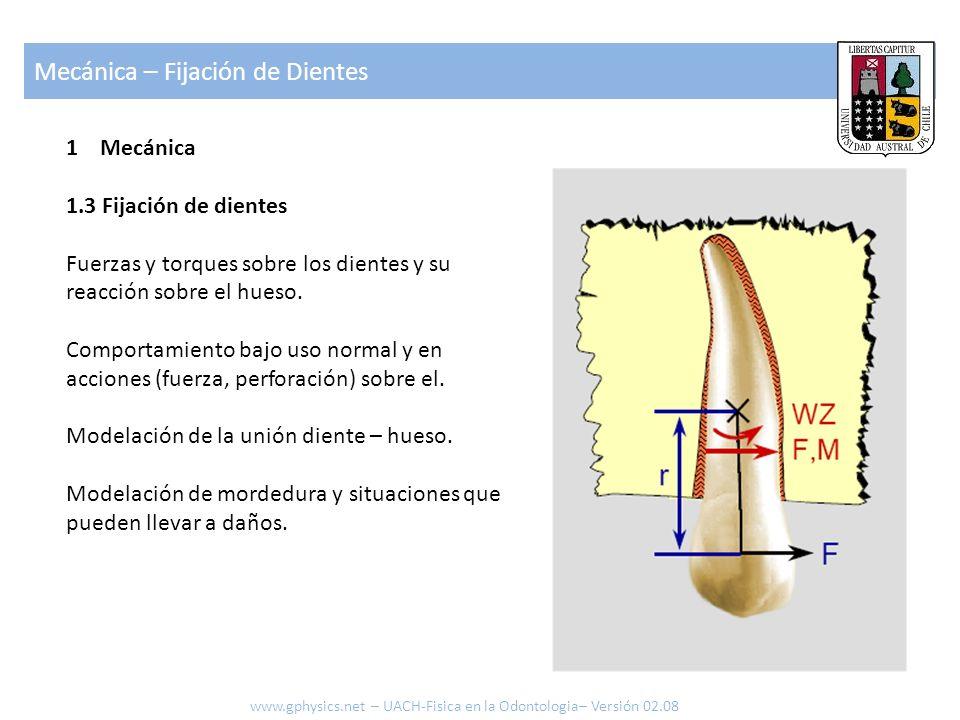 1 Mecánica 1.4 Fijación artificial (frenillos) Fuerzas sobre los dientes aplicadas mediante elementos como frenillos.