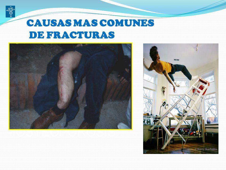 FRACTURA Es la pérdida de continuidad en la estructura normal de un hueso sumado al trauma y alteración del tejido blando y neurovascular circundante