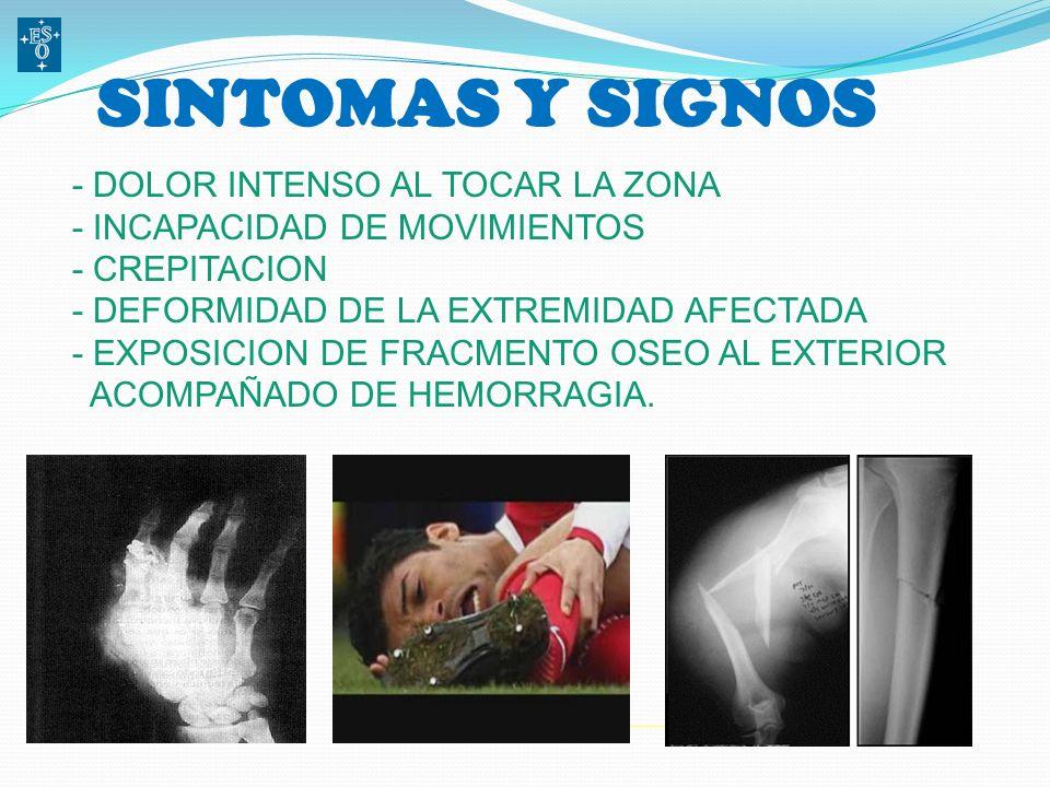 CAUSAS MAS COMUNES DE FRACTURAS - IMPACTO DIRECTO - CAIDAS - ACCIDENTES - MALTRATO - SOBRECARGA - OSTEOPOROSIS