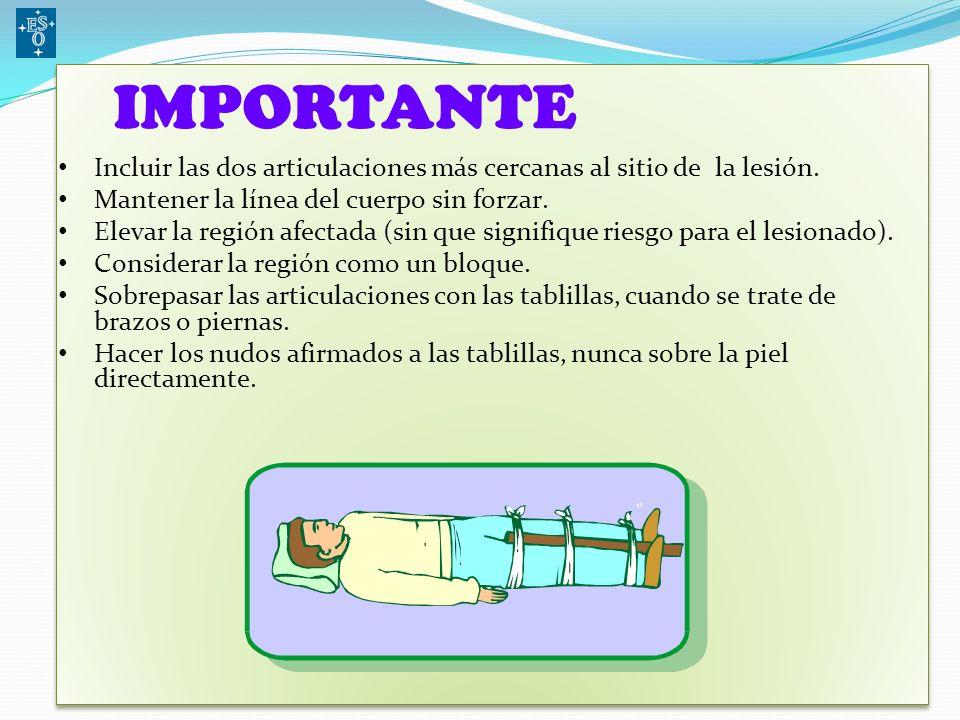 Para efectuar una inmovilización es necesario contar con el siguiente material: – Vendas – Tablillas (cartón, diarios, bastones) – Tela – Ropa, frazad