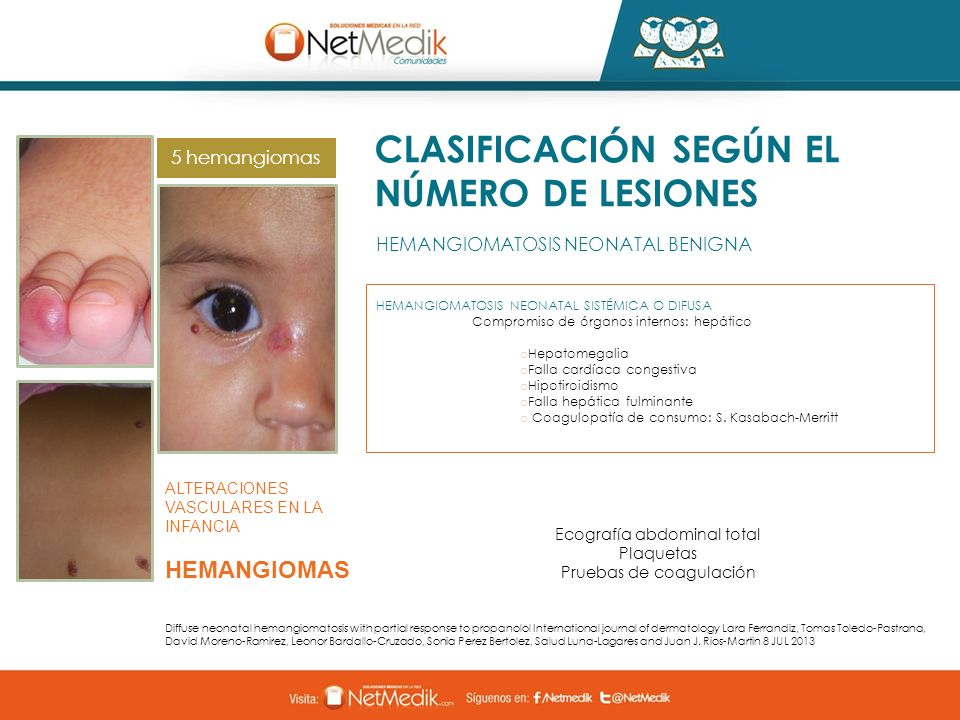 CLASIFICACIÓN SEGÚN EL NÚMERO DE LESIONES HEMANGIOMATOSIS NEONATAL BENIGNA ALTERACIONES VASCULARES EN LA INFANCIA HEMANGIOMAS Diffuse neonatal hemangi