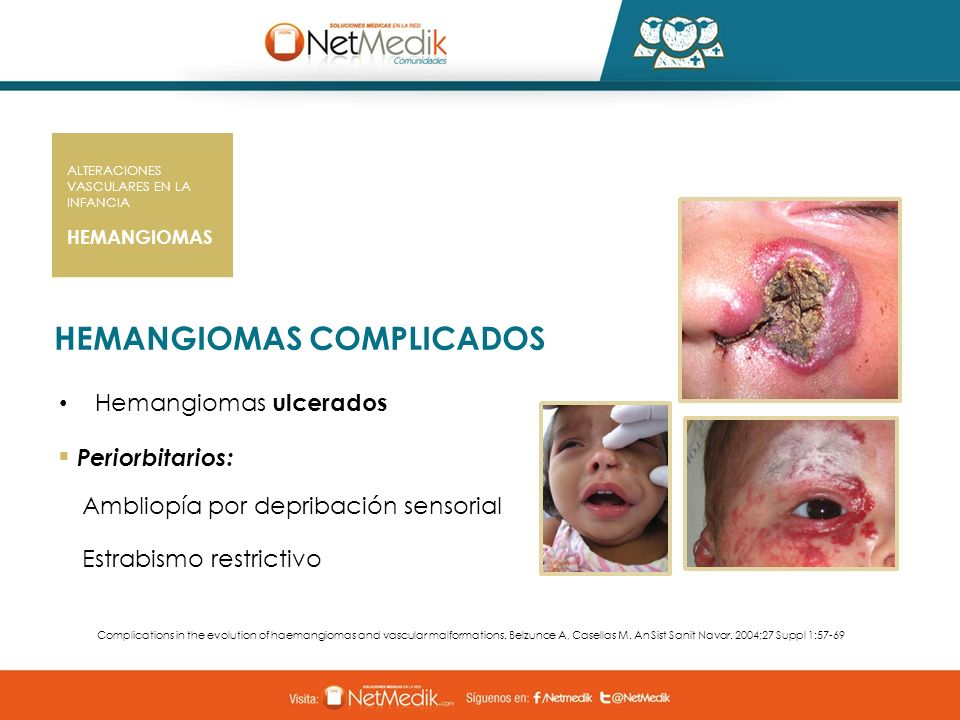 HEMANGIOMAS COMPLICADOS Hemangiomas ulcerados Periorbitarios: Ambliopía por depribación sensorial Estrabismo restrictivo Complications in the evolutio