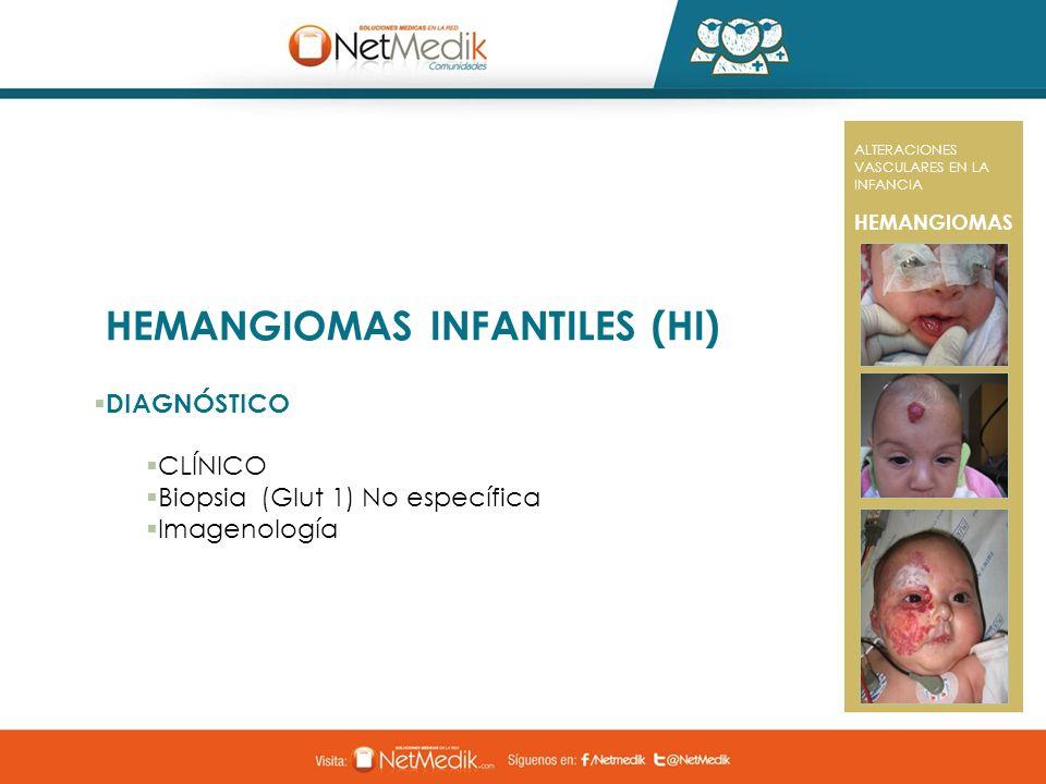 HEMANGIOMAS INFANTILES (HI) DIAGNÓSTICO CLÍNICO Biopsia (Glut 1) No específica Imagenología ALTERACIONES VASCULARES EN LA INFANCIA HEMANGIOMAS