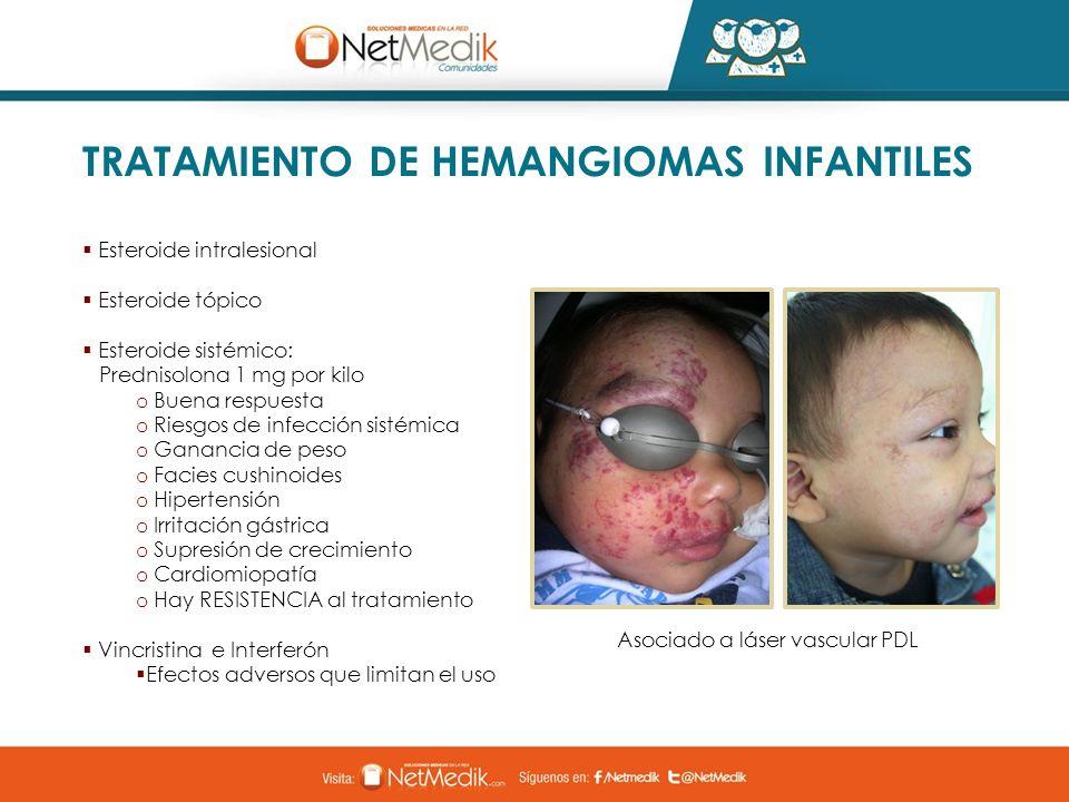 TRATAMIENTO DE HEMANGIOMAS INFANTILES Esteroide intralesional Esteroide tópico Esteroide sistémico: Prednisolona 1 mg por kilo o Buena respuesta o Rie