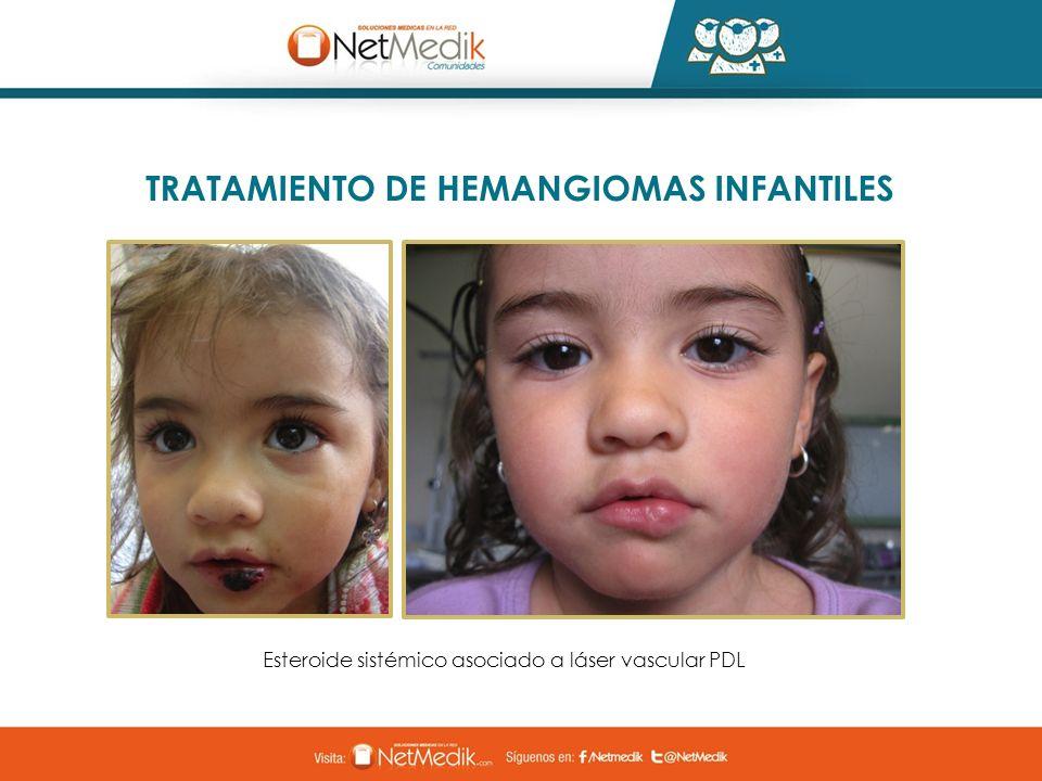 TRATAMIENTO DE HEMANGIOMAS INFANTILES Esteroide sistémico asociado a láser vascular PDL