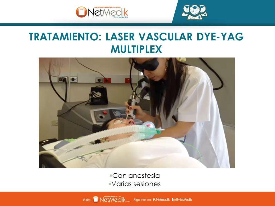 TRATAMIENTO: LASER VASCULAR DYE-YAG MULTIPLEX Con anestesia Varias sesiones