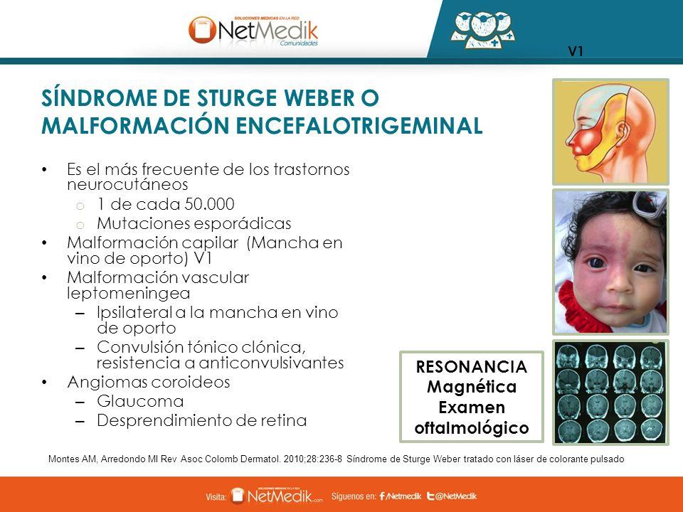 SÍNDROME DE STURGE WEBER O MALFORMACIÓN ENCEFALOTRIGEMINAL Es el más frecuente de los trastornos neurocutáneos o 1 de cada 50.000 o Mutaciones esporád