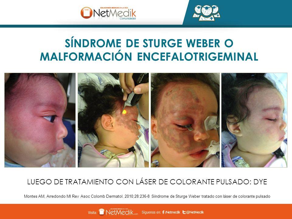 Montes AM, Arredondo MI Rev Asoc Colomb Dermatol. 2010;28:236-8 Síndrome de Sturge Weber tratado con láser de colorante pulsado SÍNDROME DE STURGE WEB