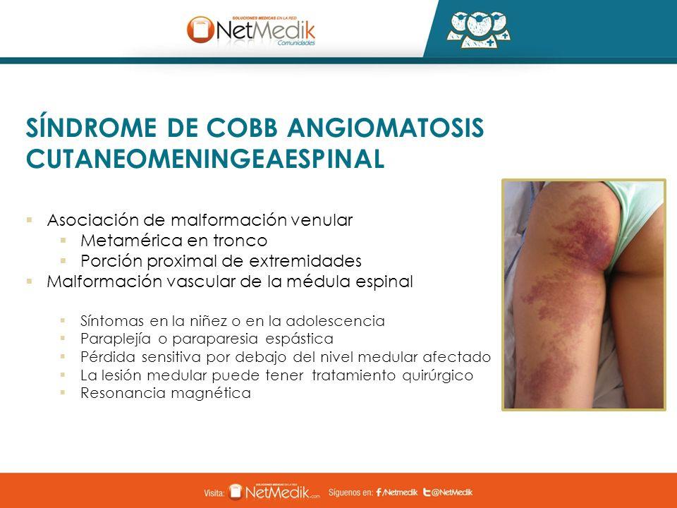 Asociación de malformación venular Metamérica en tronco Porción proximal de extremidades Malformación vascular de la médula espinal Síntomas en la niñ