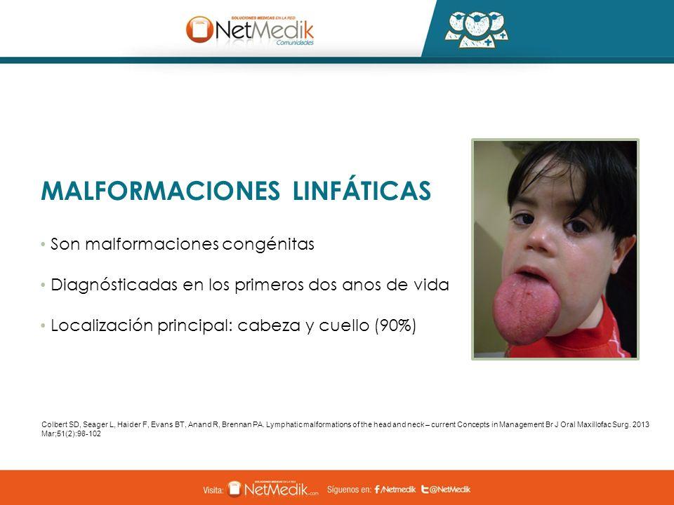 MALFORMACIONES LINFÁTICAS Son malformaciones congénitas Diagnósticadas en los primeros dos anos de vida Localización principal: cabeza y cuello (90%)