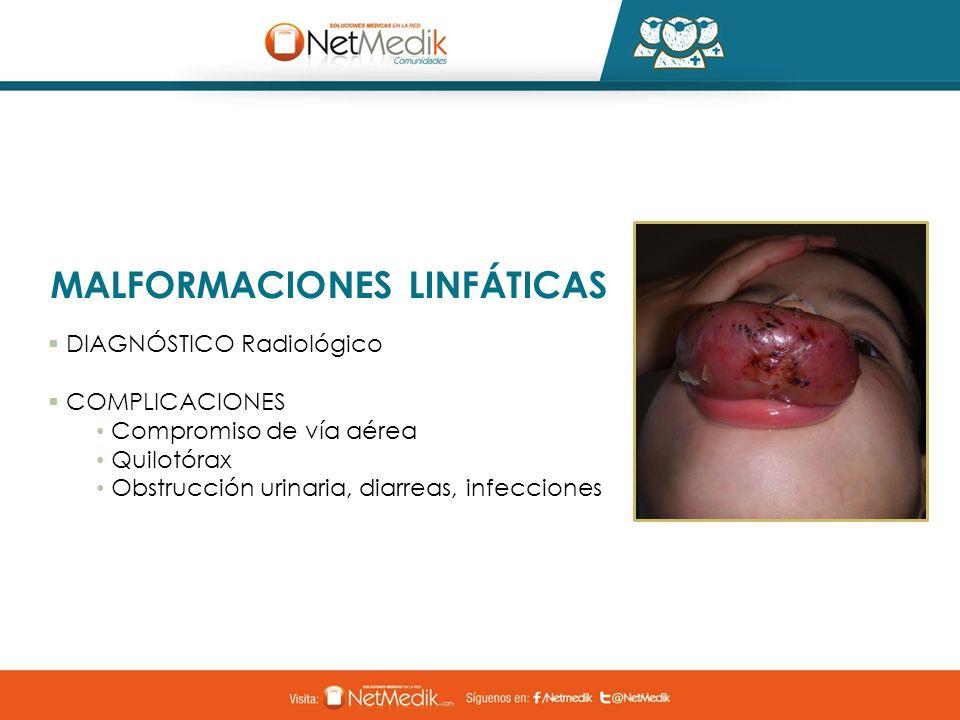 MALFORMACIONES LINFÁTICAS DIAGNÓSTICO Radiológico COMPLICACIONES Compromiso de vía aérea Quilotórax Obstrucción urinaria, diarreas, infecciones