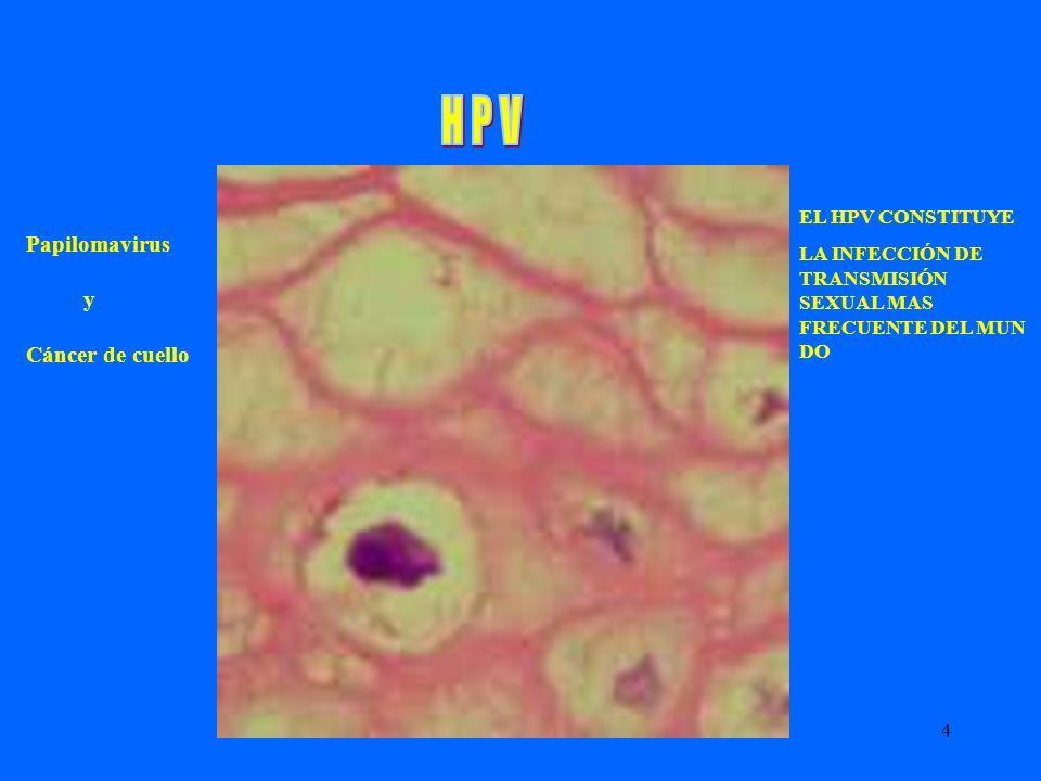 4 Papilomavirus y Cáncer de cuello EL HPV CONSTITUYE LA INFECCIÓN DE TRANSMISIÓN SEXUAL MAS FRECUENTE DEL MUN DO
