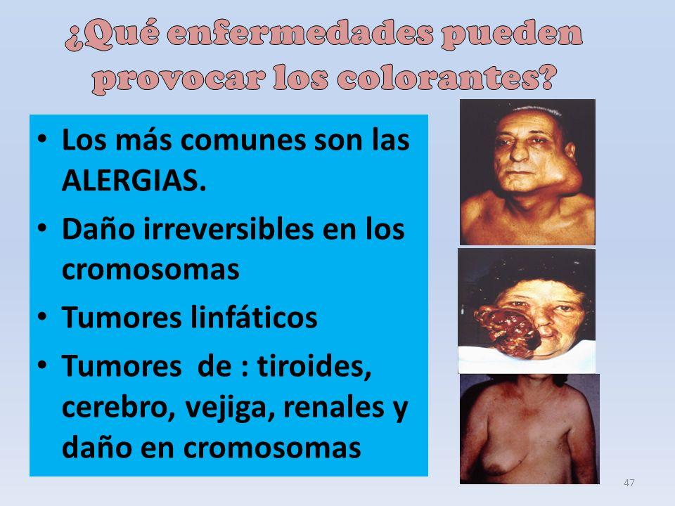 47 Los más comunes son las ALERGIAS. Daño irreversibles en los cromosomas Tumores linfáticos Tumores de : tiroides, cerebro, vejiga, renales y daño en