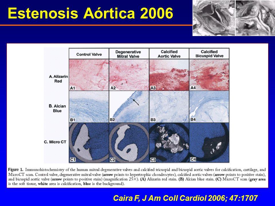 Caira F, J Am Coll Cardiol 2006; 47:1707